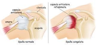 Differenza tra una spalla normale e una spalla congelata