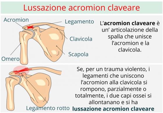 Schema della lussazione acromion claveare della clavicola