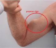 Segno di Popeye in un braccio di un uomo