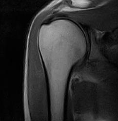 esempio esame diagnostico per la spalla congelata