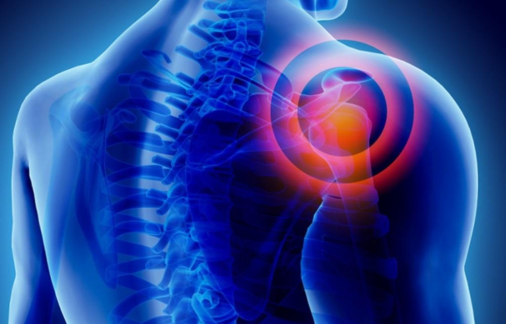 Localizzazione del dolore alla spalla