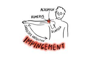 Localizzazione del dolore nell'impingment della spalla