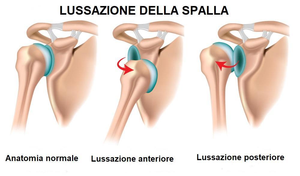 Schema per comprendere la lussazione anteriore e posteriore della spalla