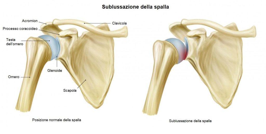 Schema sulla sublussazione della spalla